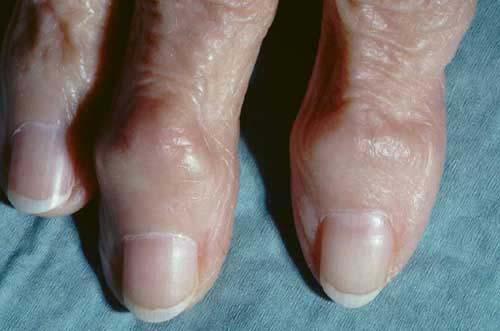 Osteoarthritis. Arthritis (in Knee, Neck, Spine, Hands) | Patient.co