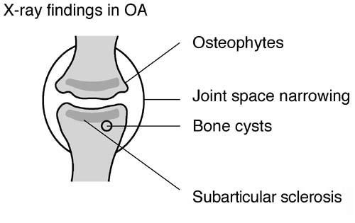 osteoarthritis  arthritis  in knee  neck  spine  hands