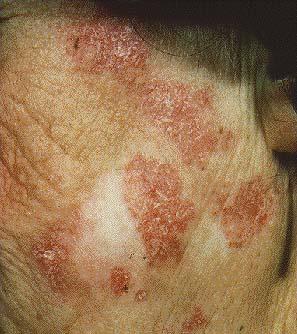 Obat Lupus Eritematosus Diskoid