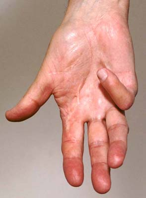 dupuytren's contracture. what is duputren's contracture? | patient, Skeleton