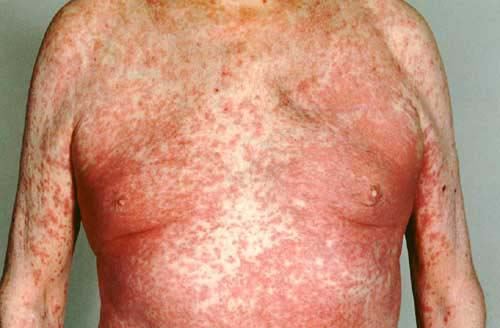 Cipro rash reaction to medication