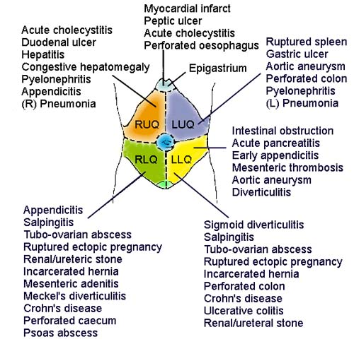 right sided diverticulitis classification essay