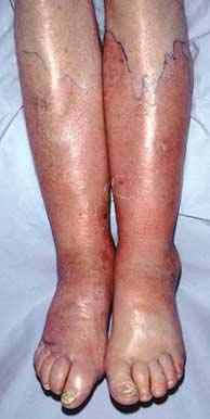 CELLULITIS SHOWING BOTH LEGS