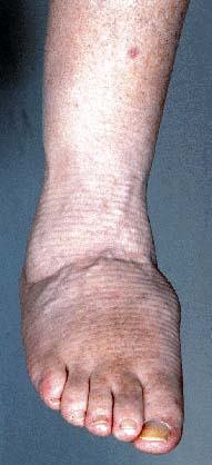 Neuropathic Joints (Charcot Joints). Information | Patient