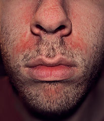 Seborrhoeic dermatitis on face