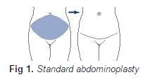 Standard abdominoplasty