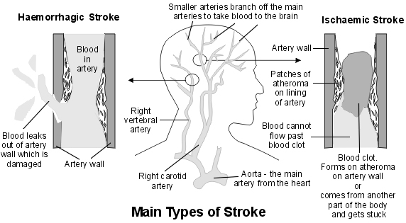 Cross-section diagram showing main arteries of the brain and the main types of stroke