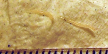 Threadworms Health Patient